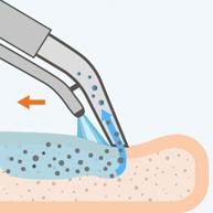 Частицы удаляются экстракторным пылесосом